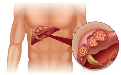 Xét nghiệm phát hiện sớm ung thư gan