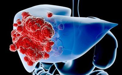 Ung thư gan – Nguyên nhân, triệu chứng và cách phòng ngừa