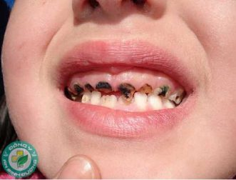 Sâu răng - Nguyên nhân và cách phòng ngừa