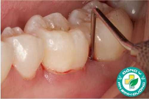 Viêm lợi, viêm nha chu gây đau răng