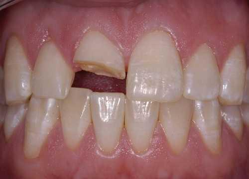 Đau răng do nứt răng, gãy răng, chấn thương