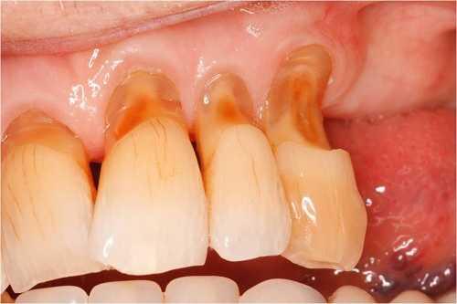 Đau răng do mòn răng