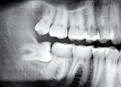 Răng khôn mọc lệch, mọc ngầm gây đau răng