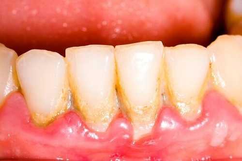 Cao răng hình thành từ mảng bám, thức ăn thừa