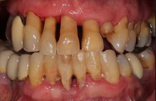 Viêm nha chu do cao răng tích tụ lâu ngày