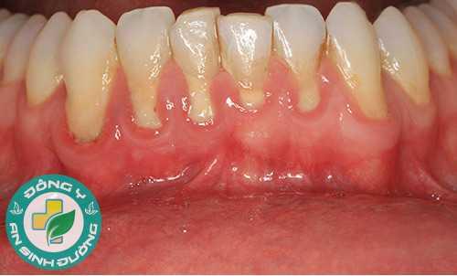 Tụt lợi do viêm chân răng