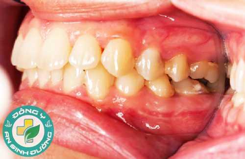 Sưng lợi là một biểu hiện sớm của viêm chân răng