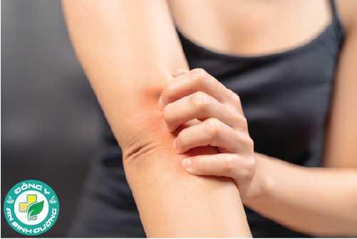 Dầu vitamin E giúp giảm ngứa tạm thời do da khô