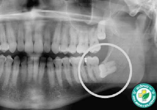 Biến chứng của mọc răng khôn có thể do mọc lệch, mọc ngầm
