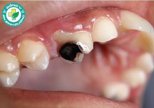 Sâu răng, gãy răng, sứt mẻ răng và trám răng bị mòn có thể khiến ngà răng bị lộ, gây ra răng nhạy cảm