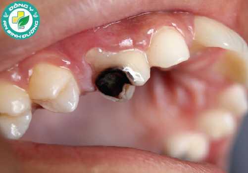 Sâu răng rất phổ biến ở Việt Nam cũng như trên thế giới