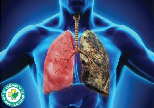 Ung thư phổi là nguyên nhân hàng đầu gây tử vong do ung thư ở cả nam và nữ