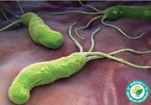H. pylori có thể gây ung thư và loét dạ dày