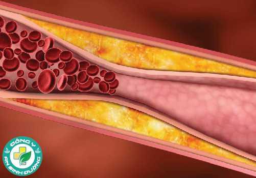 Mức cholesterol LDL cao có thể tích tụ trên thành động mạch của bạn