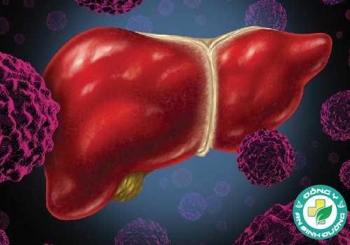 Bệnh răng miệng có thể làm tăng nguy cơ ung thư gan