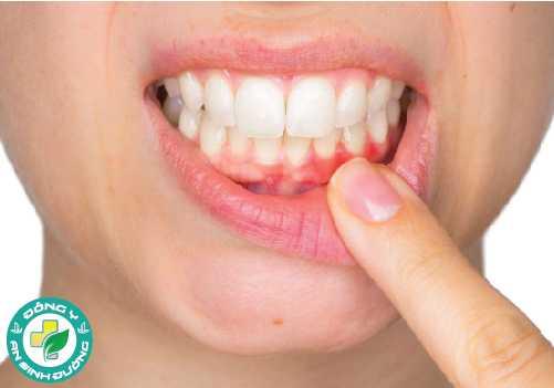 Bệnh nướu răng còn có khả năng gây ra nhiều vấn đề về sức khỏe khác
