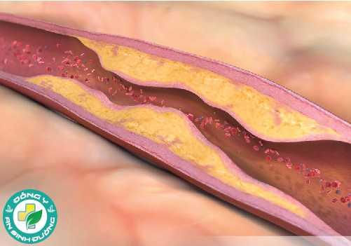 Uống nước ép cà chua không muối làm giảm mức chất béo trung tính gây xơ vữa động mạch ở phụ nữ