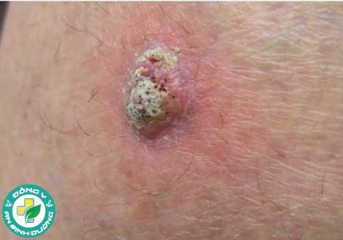 Ung thư biểu mô tế bào vảy là dạng ung thư da phổ biến nhất