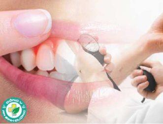 Bệnh nướu răng làm tăng nguy cơ cao huyết áp