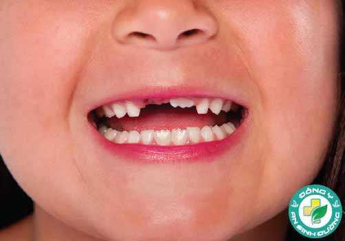 Trẻ thay rằng lần đầu vào khoảng 6 - 7 tuổi