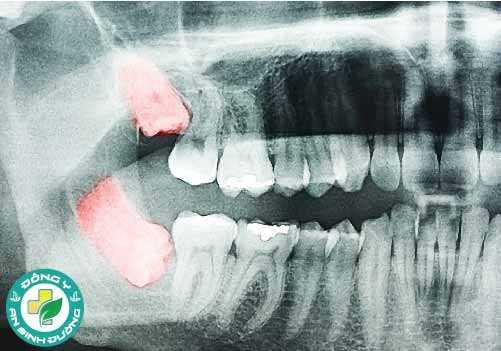 Răng khôn thường mọc ở độ tuổi từ 17 đến 25