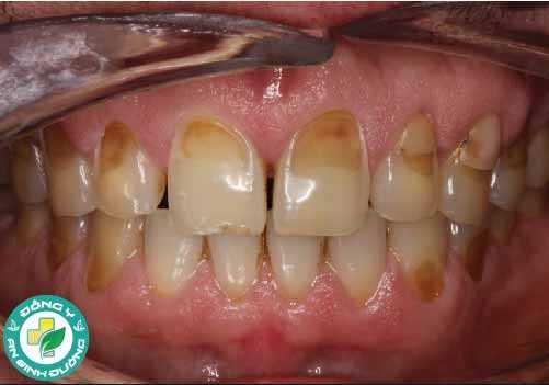 Mòn men răng là do bị axit tấn công gây xói mòn men