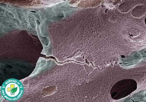 Mật độ xương của phụ nữ giảm nhanh hơn trong vài năm đầu sau khi mãn kinh