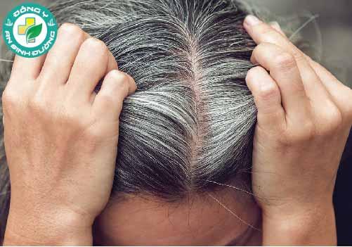 Căng thẳng không phải là yếu tố duy nhất gây bạc tóc, trong nhiều trường hợp, đó là do di truyền