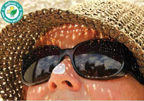 Bảo vệ làn da của bạn khỏi ánh nắng mặt trời để tránh nguy cơ ung thư da